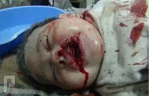 اطفال الفلوجة تقتلهم البراميل المتفجره قصف اطفال الفلوجة من جيش المالكي