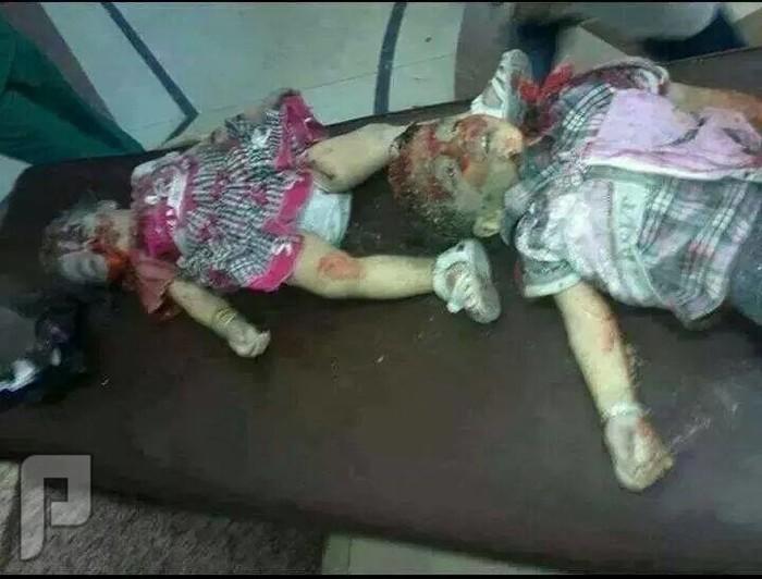 اطفال الفلوجة تقتلهم البراميل المتفجره في مستشفى الفلوجة العام