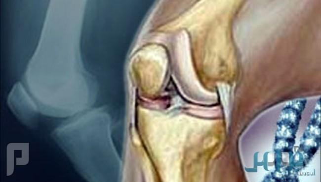 تعرف على أعراض وعلاج التهاب الفقرات المفصلي