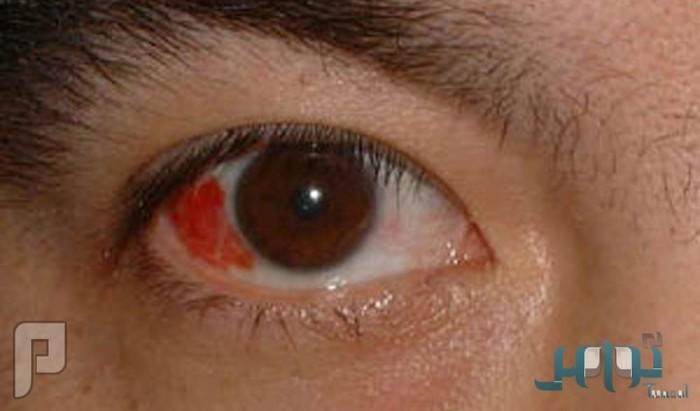 العلامات الشائعة لأمراض العيون الخطيرة
