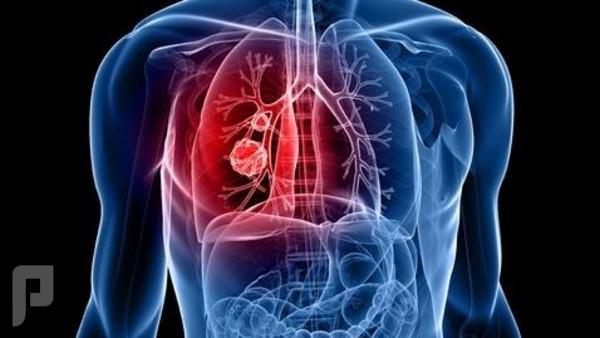 فحص جديد يكشف سرطان الرئة قبل سنوات من ظهور الورم