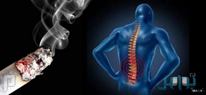 دراسة تكشف العلاقة القوية بين التدخين وآلام الظهر المزمنة