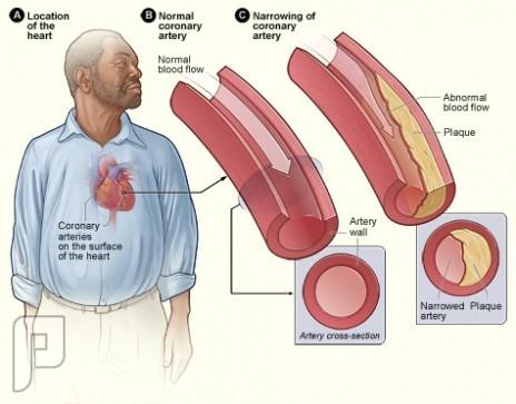 ماهو ارتفاع الكوليسترول وماهى مضاعفاته ؟وهل له علاجه ام مرض مزمن ؟
