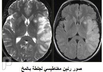 احذر !! الجلطة الدماغية