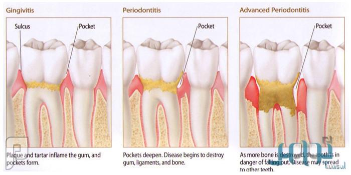 تنظيف الأسنان وإزالة الجير بين الحقائق والمخاوف