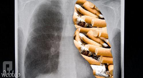 تنظيف الرئتين عند المدخنين: ما هي السبل؟