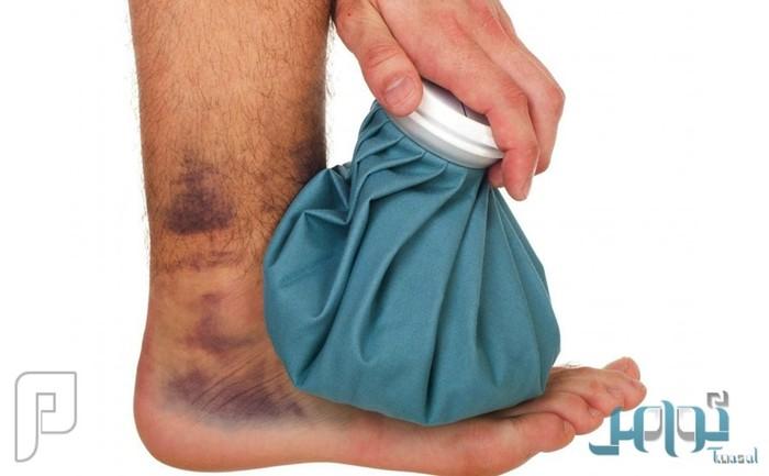 5 نصائح ذهبية لافضل طرق معالجة الاصابات الرياضية