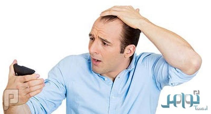 10 أطعمة صحية لوقف تساقط الشعر