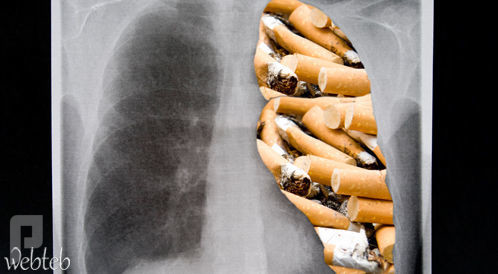 ما هي السجائر الالكترونية واضرارها وهل هي بديل للتدخين ؟