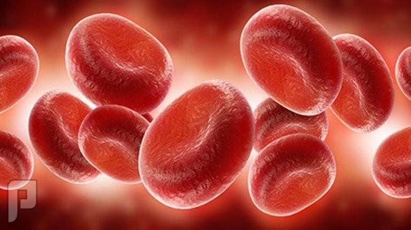 فقر الدم اسبابة وعلاجه