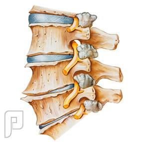 الفصال العظمي Lumbar Osteoarthritis -خشونة الفقرات القطنية