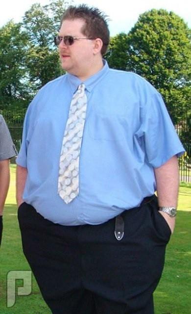 ماهو الأفضل برأيك عملية ربط المعدة أو تكميم المعدة ؟؟ رجل سمين