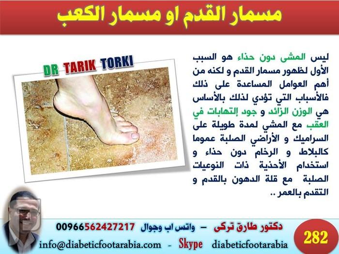 اضرار المشى على السراميك حافى القدمين    دكتور طارق تركى
