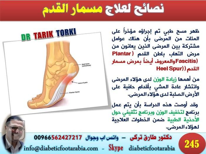 دراسات حول مسمار القدم | دكتور طارق تركى
