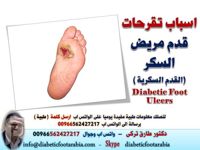 اسباب تقرحات قدم مريض السكر (القدم السكرية )   دكتور طارق تركى اسباب تقرحات قدم مريض السكر (القدم السكرية )   دكتور طارق تركى