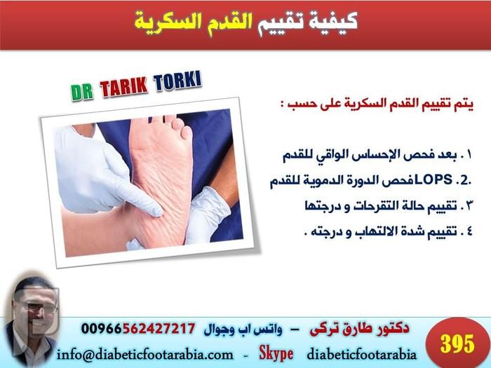 اسباب تقرحات قدم مريض السكر (القدم السكرية )   دكتور طارق تركى