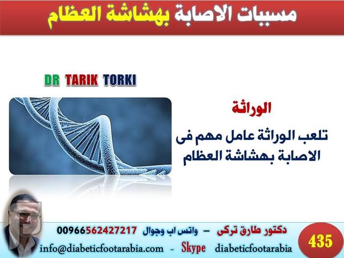 مسببات الاصابة بهشاشة العظام | دكتور طارق تركى