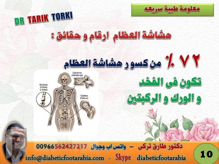 حقائق وارقام عن هشاشة العظام لم تعرفها من قبل   دكتور طارق تركى