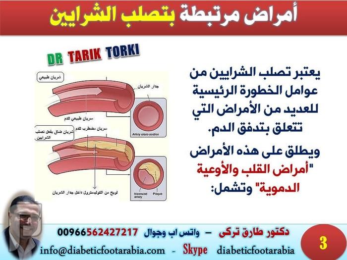 لماذا يعد تصلب الشرايين خطراً يهدد حياتنا | دكتور طارق تركى