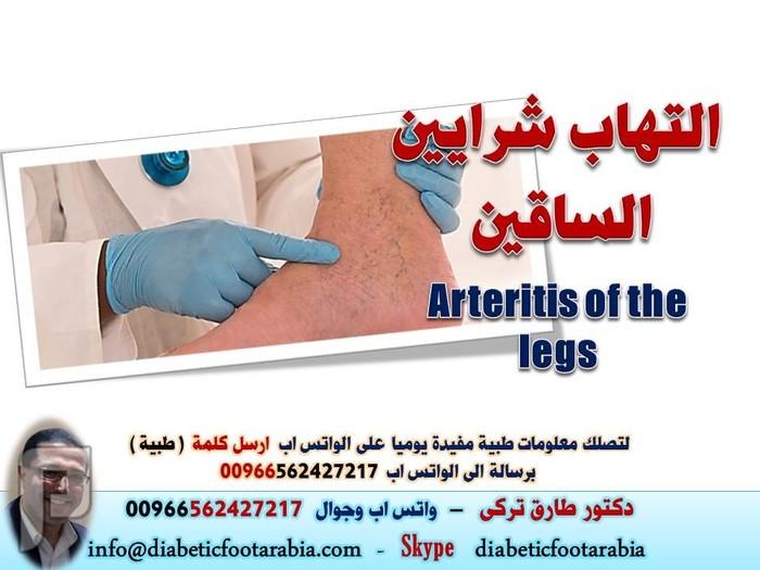 التهاب شرايين الساقين Arteritis of the legs   دكتور طارق تركى التهاب شرايين الساقين Arteritis of the legs   دكتور طارق تركى