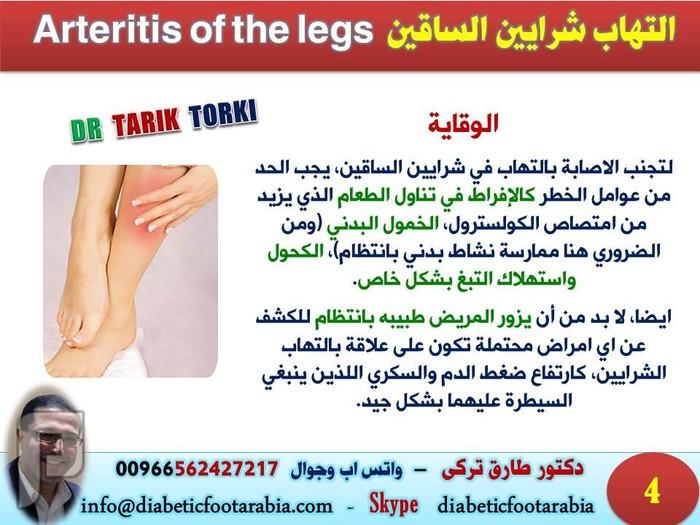 التهاب شرايين الساقين Arteritis of the legs   دكتور طارق تركى