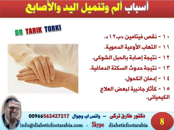 ألم وتنميل اليد والأصابع..الأسباب و العلاج | دكتور طارق تركى