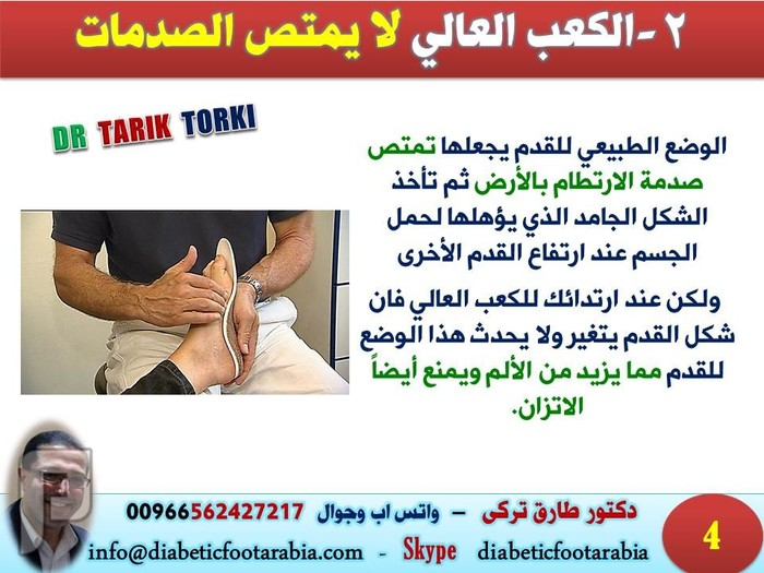5 معلومات لا تعرفينها عن الكعب العالي | دكتور طارق تركى