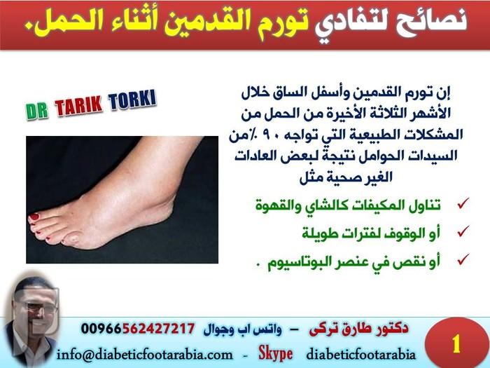 نصائح لتفادي تورم القدمين أثناء الحمل | دكتور طارق تركى