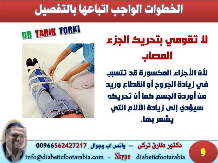 الإسعافات الأولية للكسور بطريقة مبسطة | دكتور طارق تركى