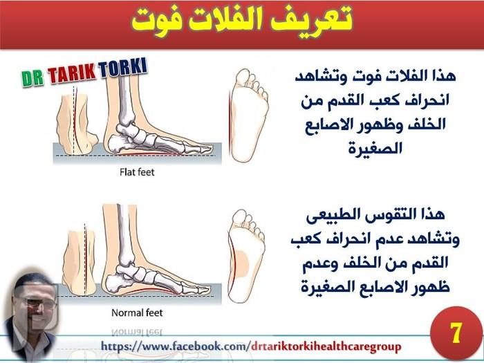 ماهو الفلات فوت | القدم المسطحة | القدم المفلطحة | دكتور طارق تركى