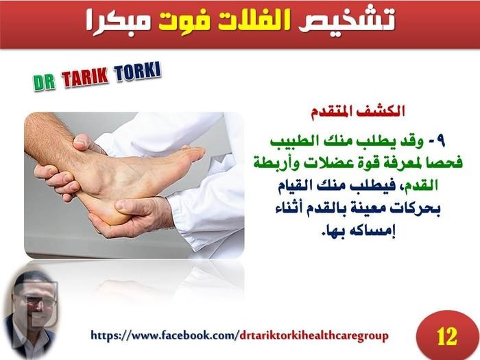 تشخيص الفلات فوت مبكرا | طرق التشخيص المبكر للفلات فوت | دكتور طارق تركى