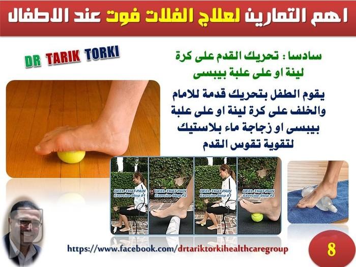 اهم التمارين لعلاج الفلات فوت عند الاطفال   دكتور طارق تركى