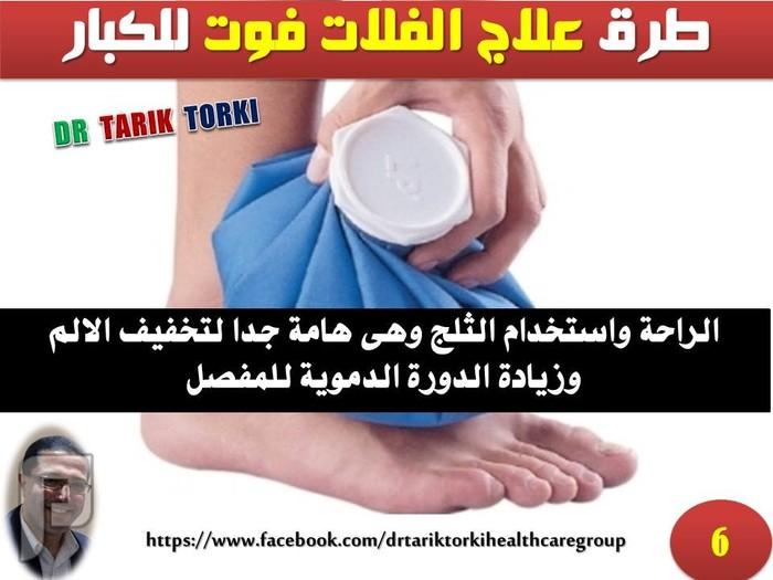 طرق علاج الفلات فوت للكبار   دكتور طارق تركى