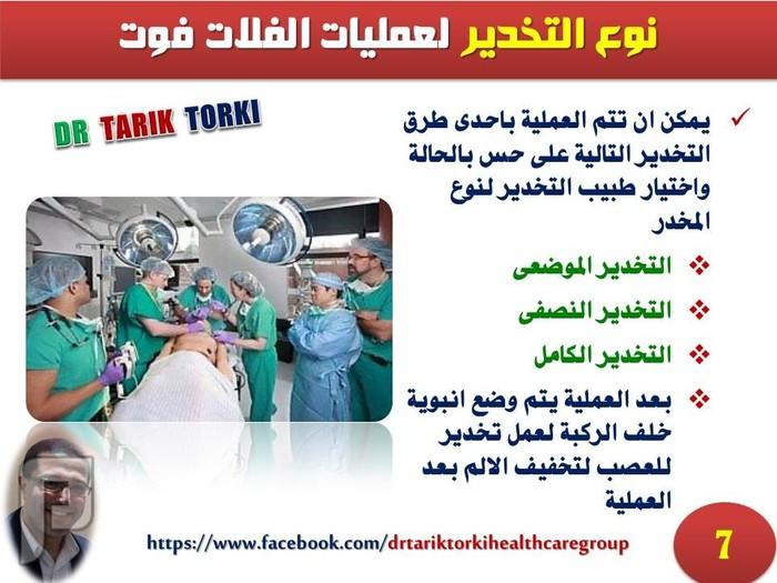 ملف كامل عن العلاج الجراحى للفلات فوت | دكتور طارق تركى