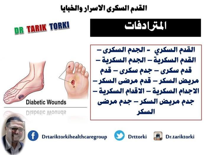 القدم السكرى اسرار وخبايا   تعريف القدم السكرى   دكتور طارق تركى