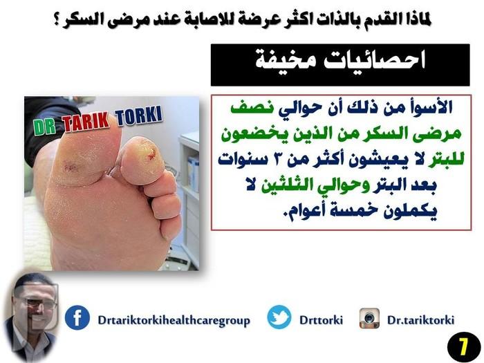 لماذا القدم بالذات اكثر عرضة للاصابة ؟ | دكتور طارق تركى