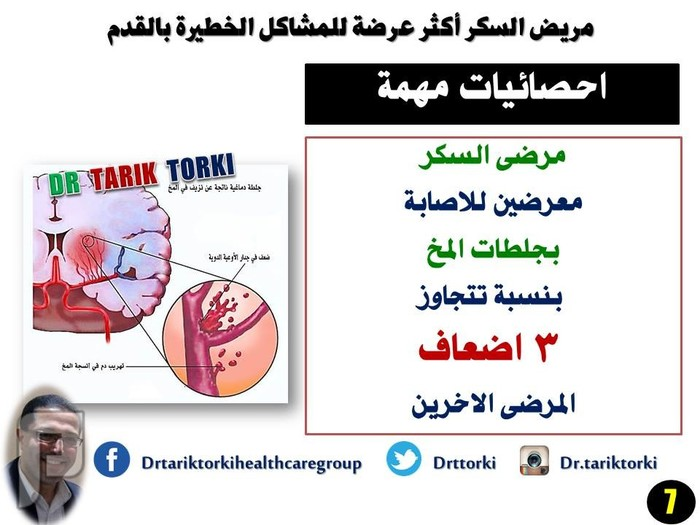 مريض السكر أكثر عرضة للمشاكل الخطيرة بالقدم | دكتور طارق تركى