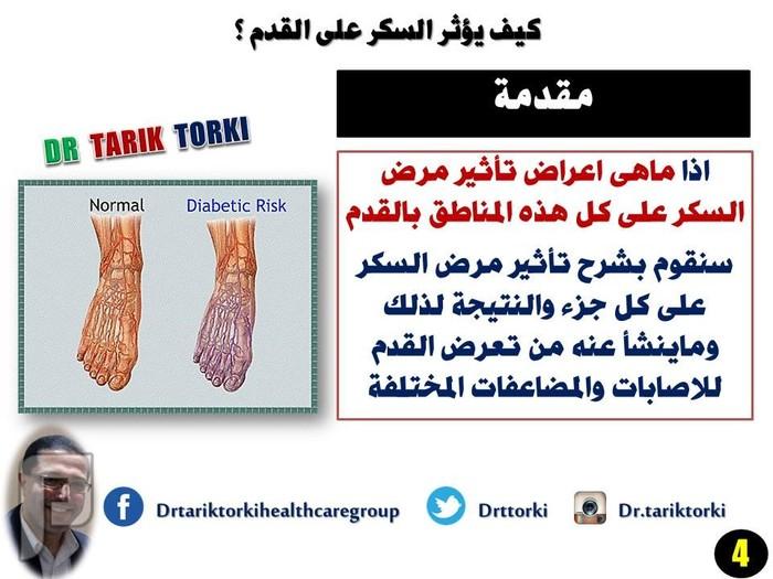 كيف يؤثر السكر على القدم ؟ | دكتور طارق تركى