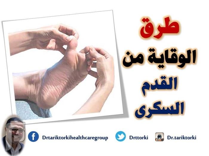 طرق الوقاية من القدم السكرى   دكتور طارق تركى طرق الوقاية من القدم السكرى   دكتور طارق تركى