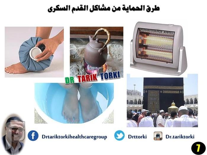 طرق الحماية من مشاكل القدم السكرى | دكتور طارق تركى