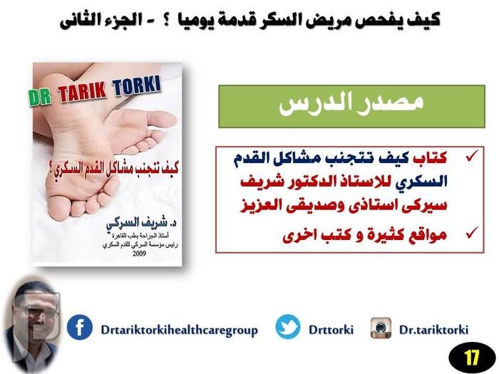 كيف يفحص مريض السكر قدمة يوميا ؟ - الجزء الثانى  | دكتور طارق تركى
