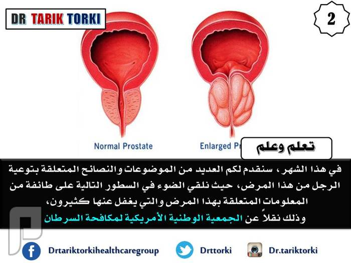 7 معلومات صادمة لا تعرفها عن سرطان البروستات | دكتور طارق تركى