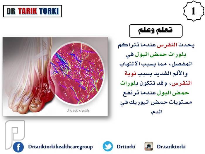 مرض النقرس ( داء الملوك ) .. أسباب وعوامل خطورة   دكتور طارق تركى