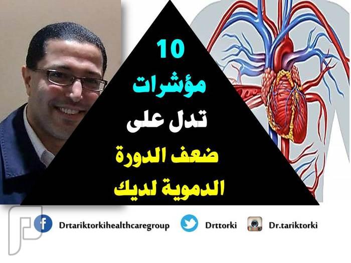 10 مؤشرات تدل على ضعف الدورة الدموية لديك | دكتور طارق تركى 10 مؤشرات تدل على ضعف الدورة الدموية لديك | دكتور طارق تركى