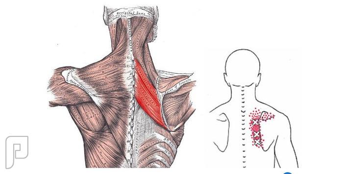 العقد العضلية.. اسبابها علاجها