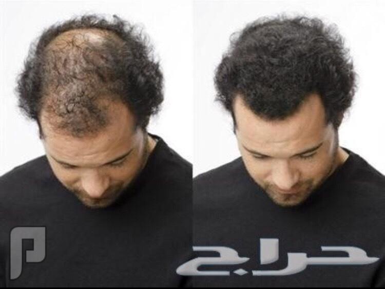 اقوى منتج لانبات الشعر ( راس لحيه شنب ) ويعالج الصلع والثعلبه وتطويل وتنعيم